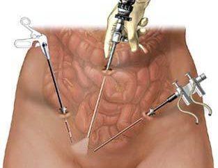 4 mitos y realidades sobre la ligadura de trompas por laparoscopia